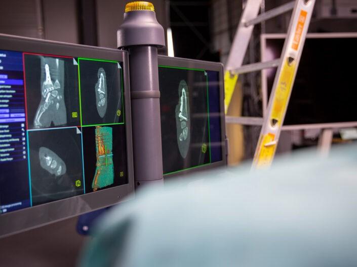 Röntgen Bildschirm